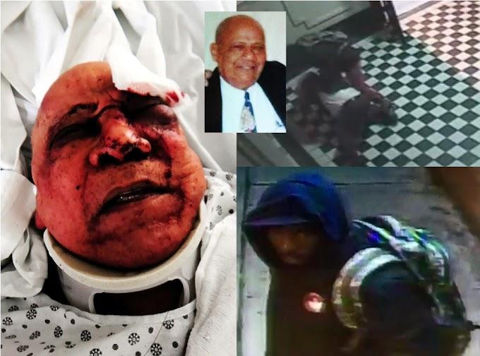 Atracador da brutal paliza a dominicano de 78 años para robarle la cartera y el celular