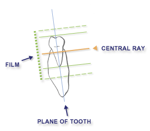 Intraoral radiographic techniques paralleling technique chapter 2 figure 34 ccuart Image collections