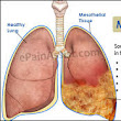 Mesothelioma lawyer  | FIRE SAFETY AND HEALTH