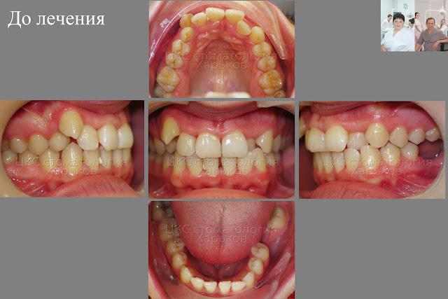 Ситуация в полости рта до ортодонтического лечения