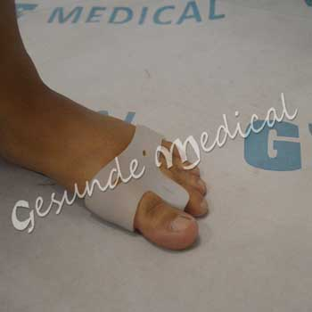 dimana beli terapi alas jari kaki