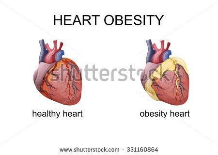 Differences between an obese heart and a normal heart