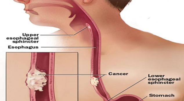 Kanker Esophageal kanker yang berbahaya dan mematikan