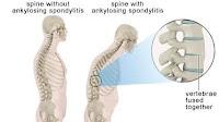 Ankylosing spondylitis http://www.udan.name