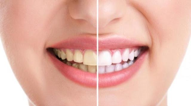 Percaya atau Tidak, Dengan Cara Ini Bisa Putihkan Gigi Hanya dalam 1 Menit!