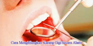 karang gigi, plak, bau mulut, penyebab karang gigi, cara membersihkan karang gigi secara alami dan mudah, penyebab dan cara menghilangkan karang gigi secara alami, cara mudah hilangkan karang gigi, cara ampuh menghilangkan karang gigi dan plak, cara membersihkan karang gigi sendiri, cara membersihkan karang gigi tanpa harus ke dokter, cara mengatasi karang gigi, karang gigi penyebab bau mulut, biji asam kawak, cengkeh