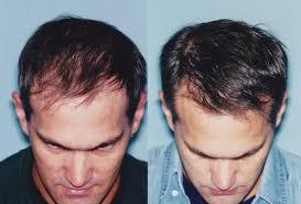 saç ekimi öncesi ve sonrası foto 15
