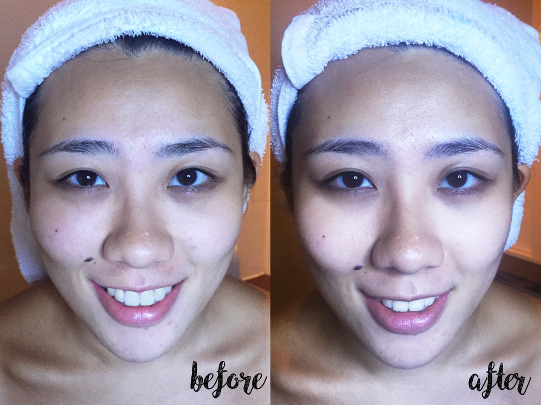 Fresver Beauty  My Experience And Review Beautybyrah