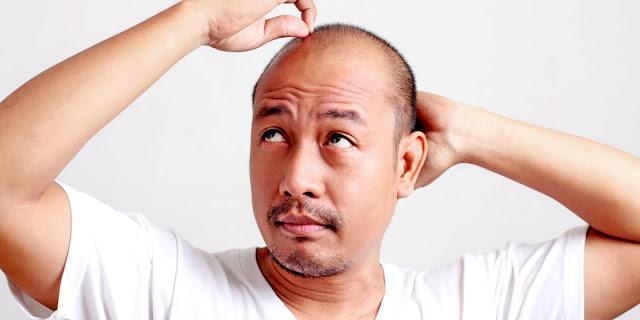 Jenis Kebotakan Stress Induced Alopecia , obat rambut botak, penumbuh rambut