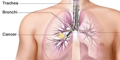 http://herbalcakrawala.com/2018/05/10/obat-kanker-paru-paru/