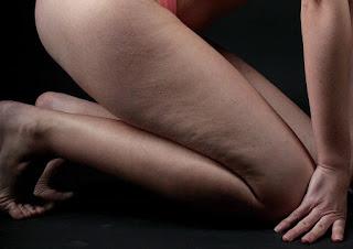 Celulitis como eliminarla