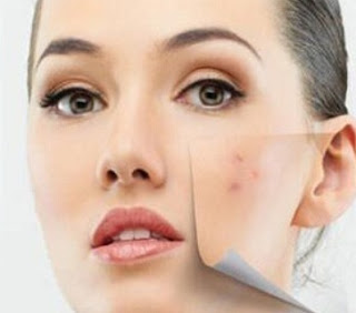 How To Get Rid Of Acne, How To Get Rid Of Acne Fast, Home Remedies For Acne, Acne Treatment, How To Cure Acne, Acne Home Remedies, How To Cure Acne Fast, Acne Remedies, Home Remedies For Acne Treatment, Easy Acne Treatment, Acne Treatment, How To Treat Acne Fast
