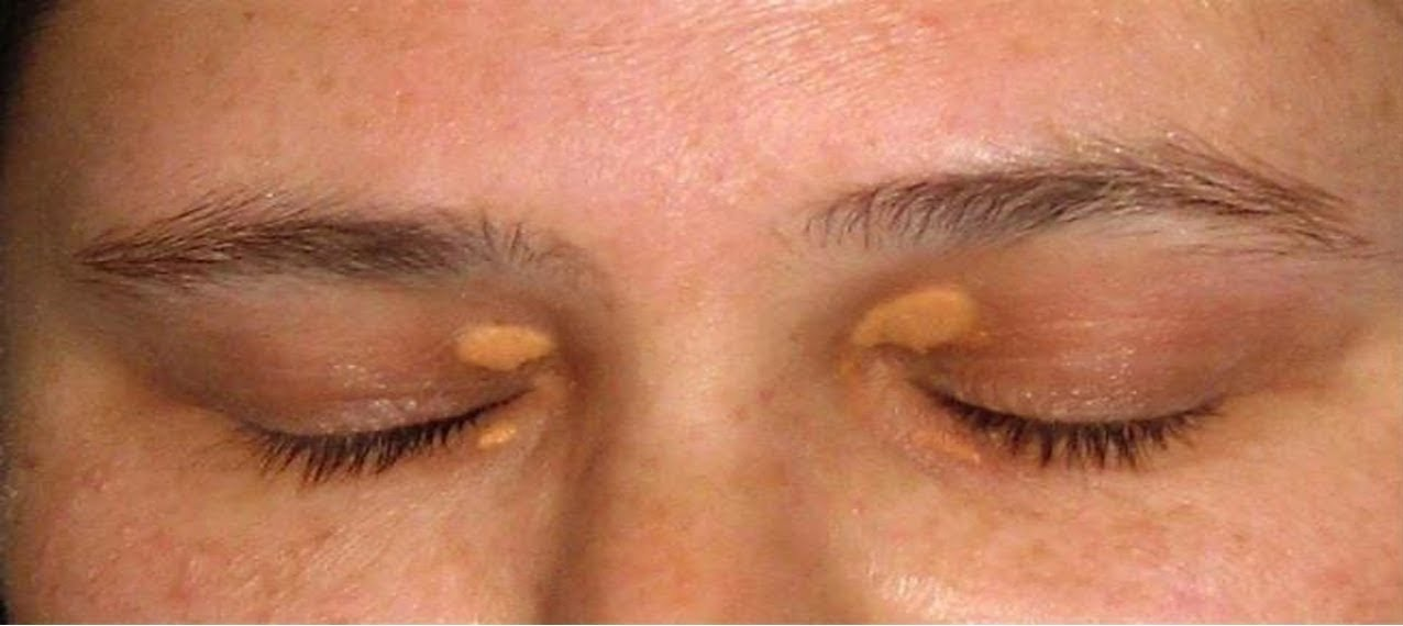 Cara Menghilangkan Endapan Lemak Di Kelopak Mata Atas Dan Bawah