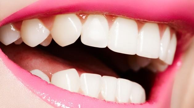 Dentista Alerta Para O Perigo De Realizar Clareamento Dental Caseiro