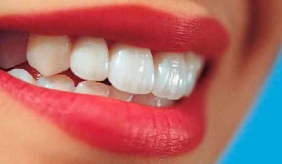Lakukan salah satu atau beberapa cara berikut ini. Lihat hasilnya, gigi tampak putih dengan cepat.