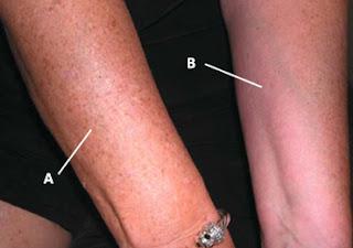 mancha mano, mancha brazo, mancha sol, envejecimiento piel