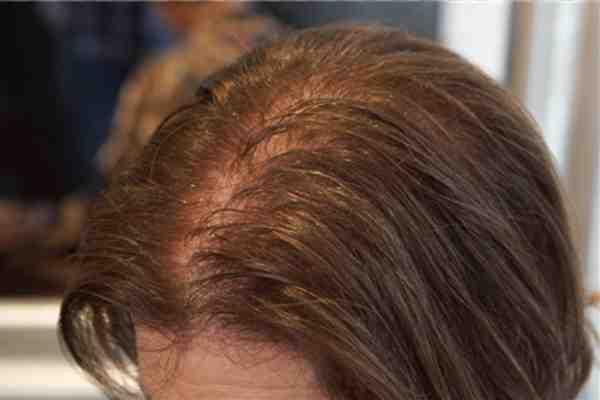 تجربتي مع تساقط الشعر