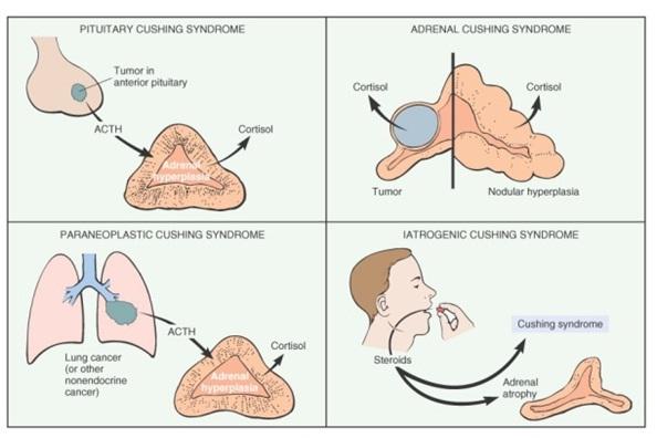 sindrom cushing etiologie
