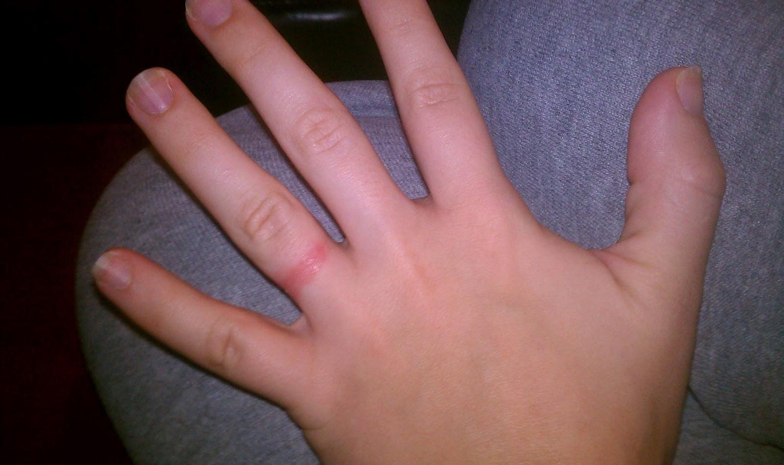 My Wedding Ring Is Giving Me A Rash