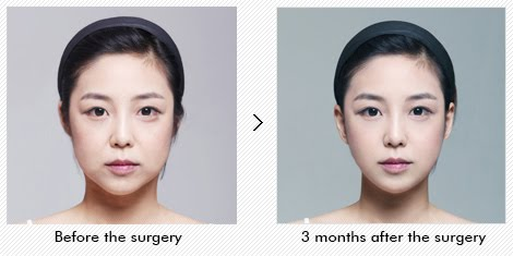 Wonjin Plastic Surgery Clinic Seoul Korea Non-Incision Face Contour