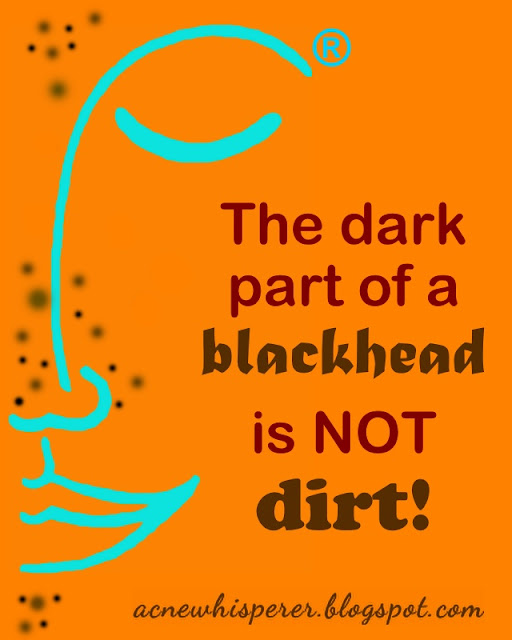 The dark parts of blackheads are not dirt!  Find out more on the Acne Whisperer Blog.