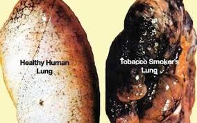 Nikotin dan Bahayanya