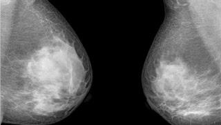 hasil-mammografi