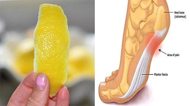Khasiat Luar Biasa Kulit Lemon