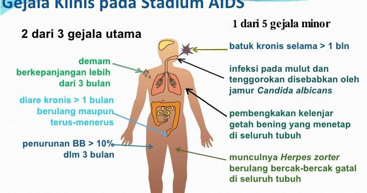 GEJALA HIV AIDS yang SERING TERJADI Terapihiv com