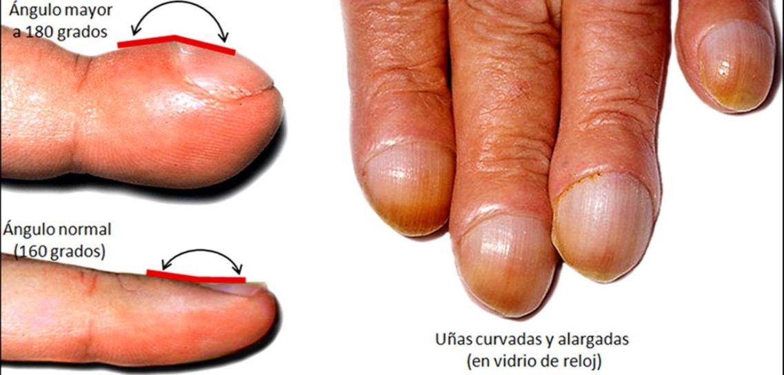 clínica gay dedos