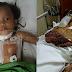 Kanak² 3 Tahun Cedera Dikelar Bapa