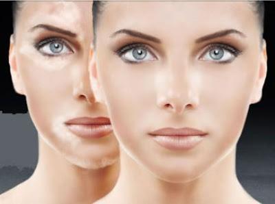 http://drparthasarathi.com/vitiligo-surgery/