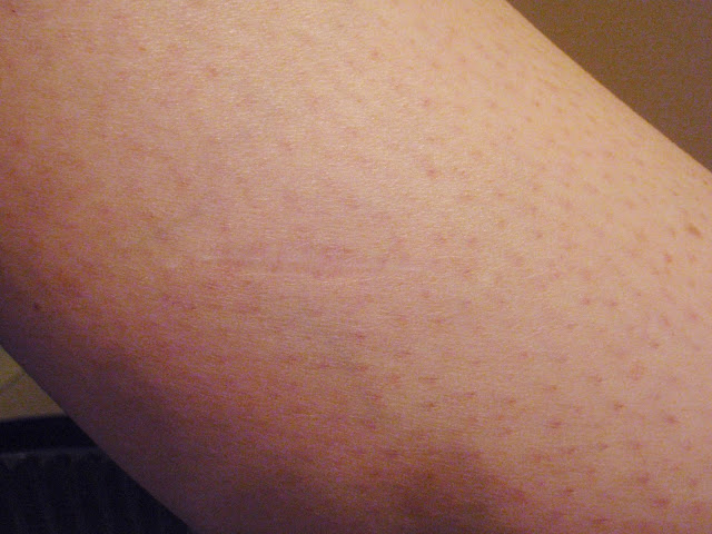 scar after dermatofibroma removal