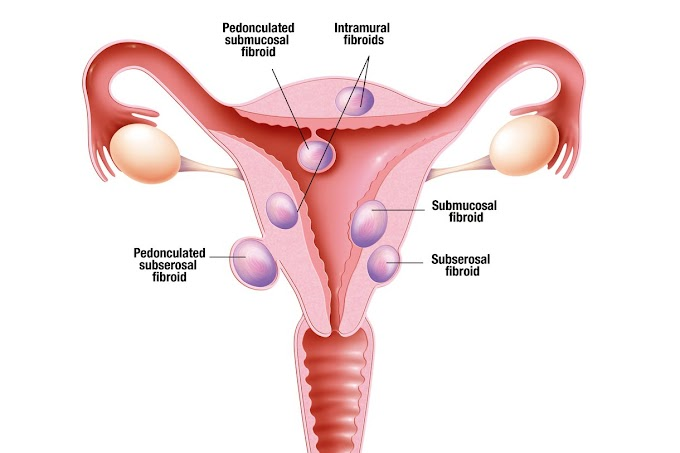 FIBROIDS AND OUR FIBROID REMOVAL PACK