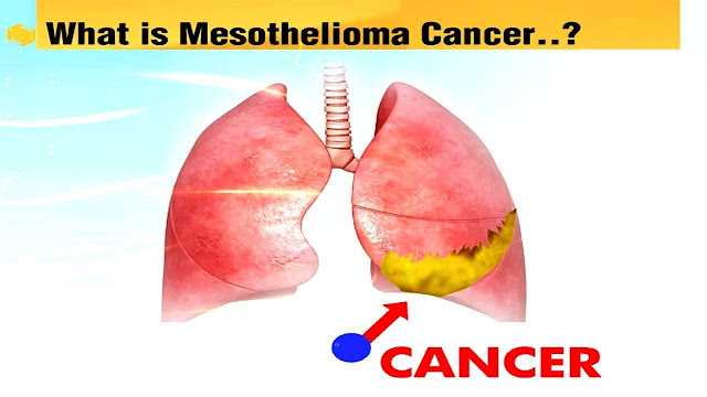 what is the mesothelioma?