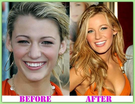 blake lively plastic surgery