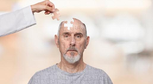 yakni kondisi kelainan yang ditandai dengan penurunan daya ingat Inilah 11 Cara Efektif Menangkal Alzheimer (Penyakit Pikun)