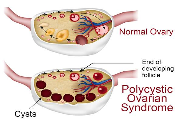 an analysis of the topic of ignorance and the polycystic ovarian syndrome Polycystic ovarian syndrome trend analysis chapter 5 polycystic ovarian for gmt office hours call +353-1-416-8900 related topics.