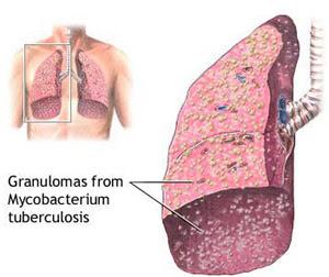 Berbagai Penyakit Yang Berhubungan Oleh Terganggunya faedah Paru-paru