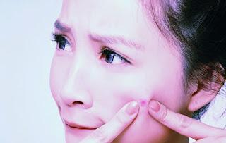 Cara Ampuh Menghilangkan Jerawat Secara Alami,jerawat hilan alami,menghilangkat jerawat tanpa efek samping