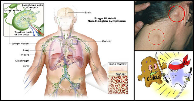 Hodgkin S Lymphoma Natural Remedies
