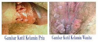 Cara Cepat Pengobatan Penyakit Condyloma Acuminata