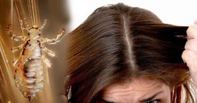 Tips Ampuh Musnahkan Kutu Rambut Dengan Mayones