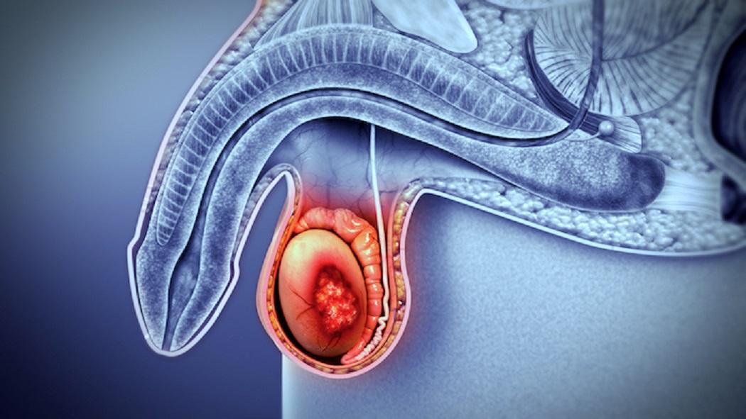 ¿qué hace una próstata por un hombre casa