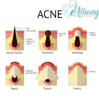 Abоut Acne, іtѕ Types & Symptoms