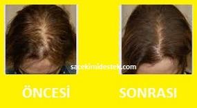 saç mezoterapisi öncesi ve sonrası 22