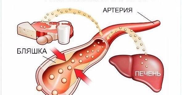 понизить холестерин в крови народными
