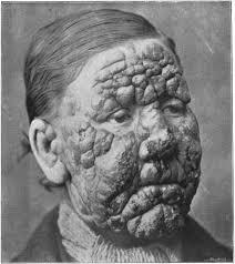 wajah-penderita-lepra