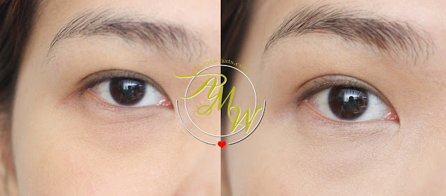 a before and after photo Celeteque 2-in-1 Eye Bag Miracle Kit Natural