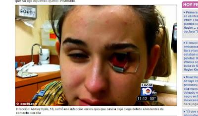 parásito de ojos